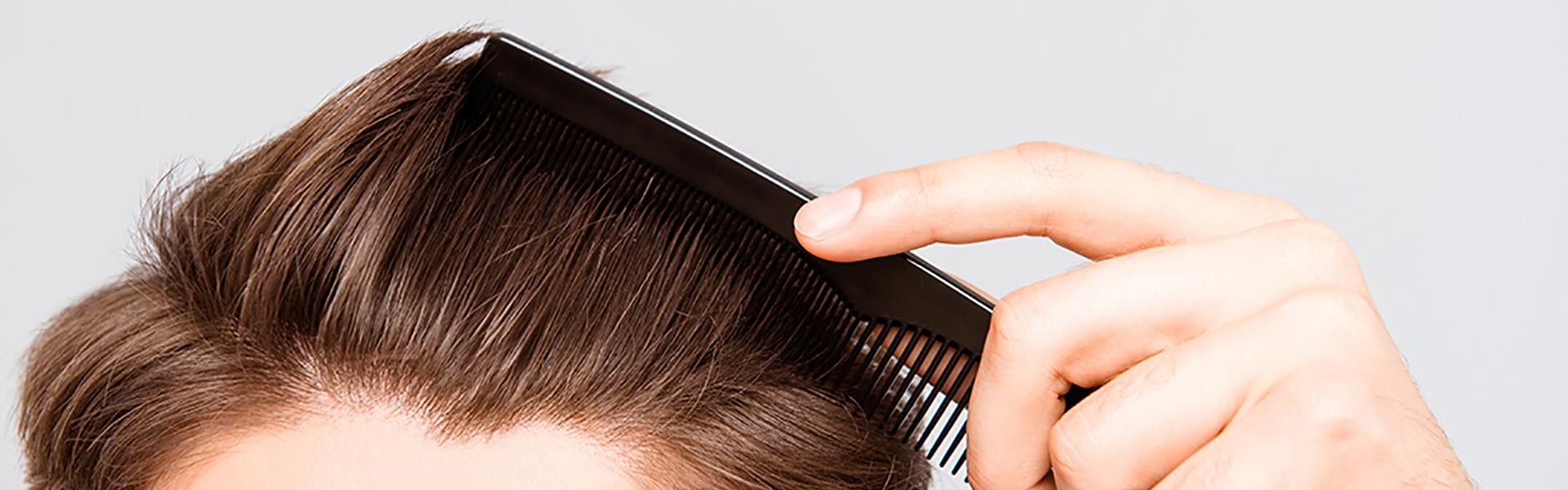 Saç dökülmeleri prp uygulanması